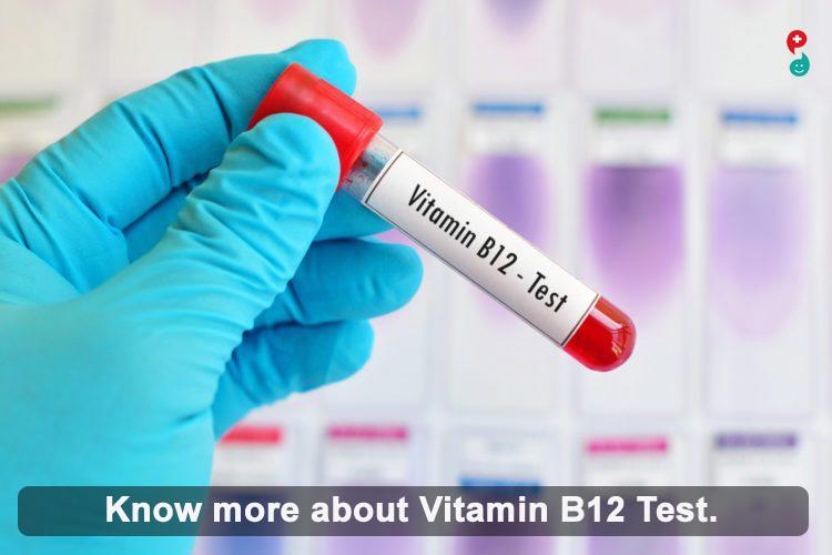 Vitamin  B12  Test