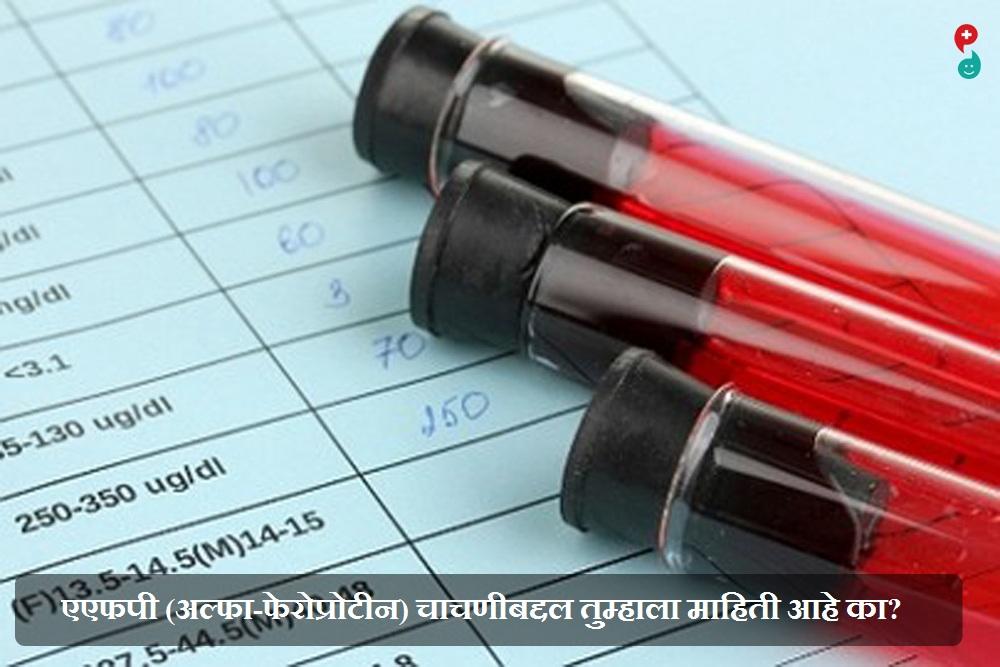 अल्फा-फेट्रोप्रोटीन (एएफपी) चाचणी