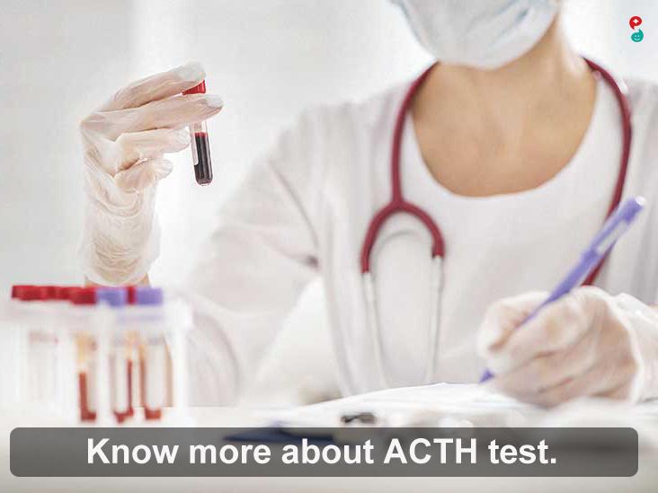 ACTH(Adrenocorticotropic Hormone)Test