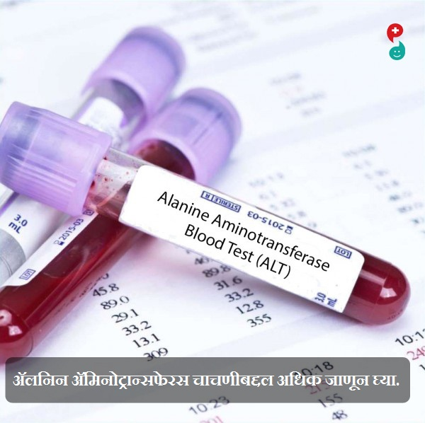एलनाइन अॅमिनोट्रान्सफेरसे (एएलटी) चाचणी