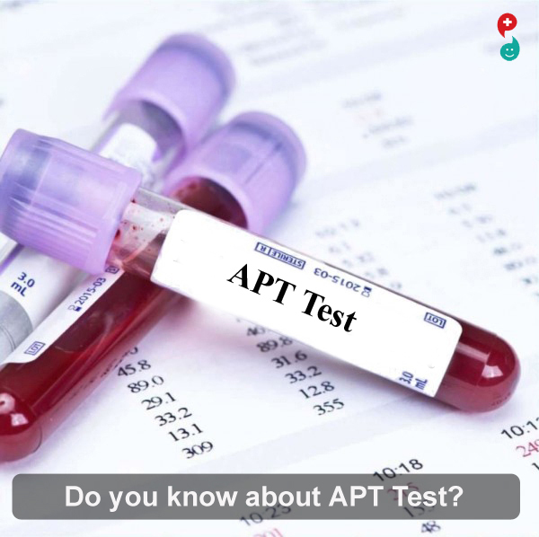 Activated Partial Thromboplastin Time Test (APTT)