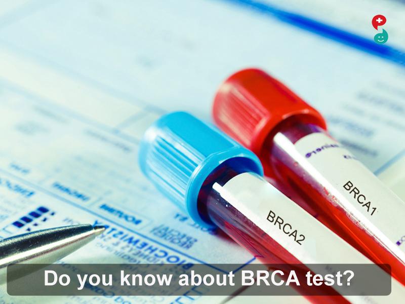 BRCA Test