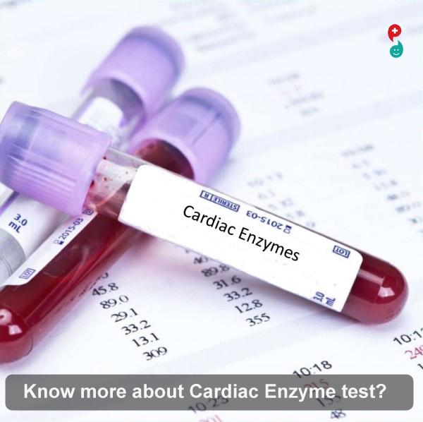 Cardiac Enzyme Test