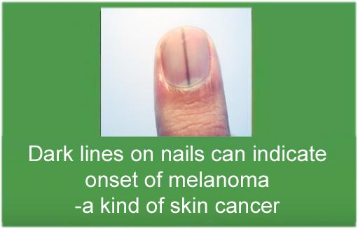 Fingernail indicators