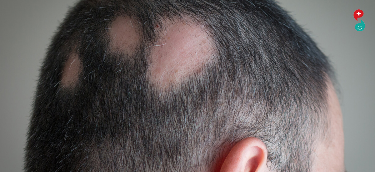 Alopecia/Hair loss
