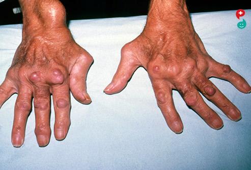 Arteriosclerotic Retinopathy