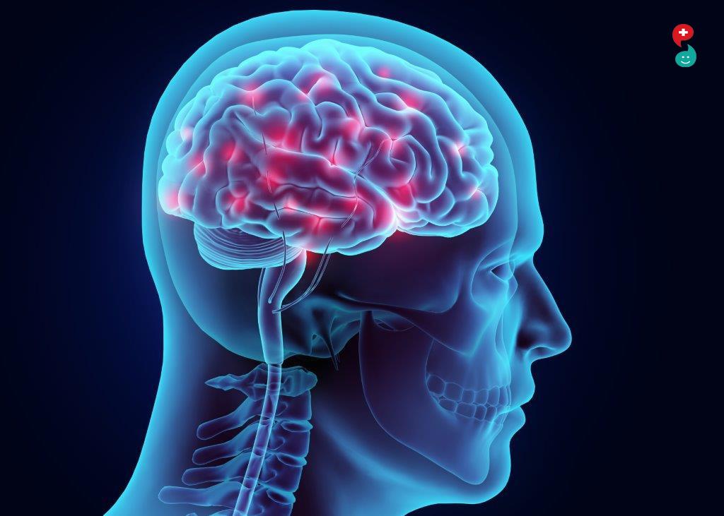Brain Hemorrhage