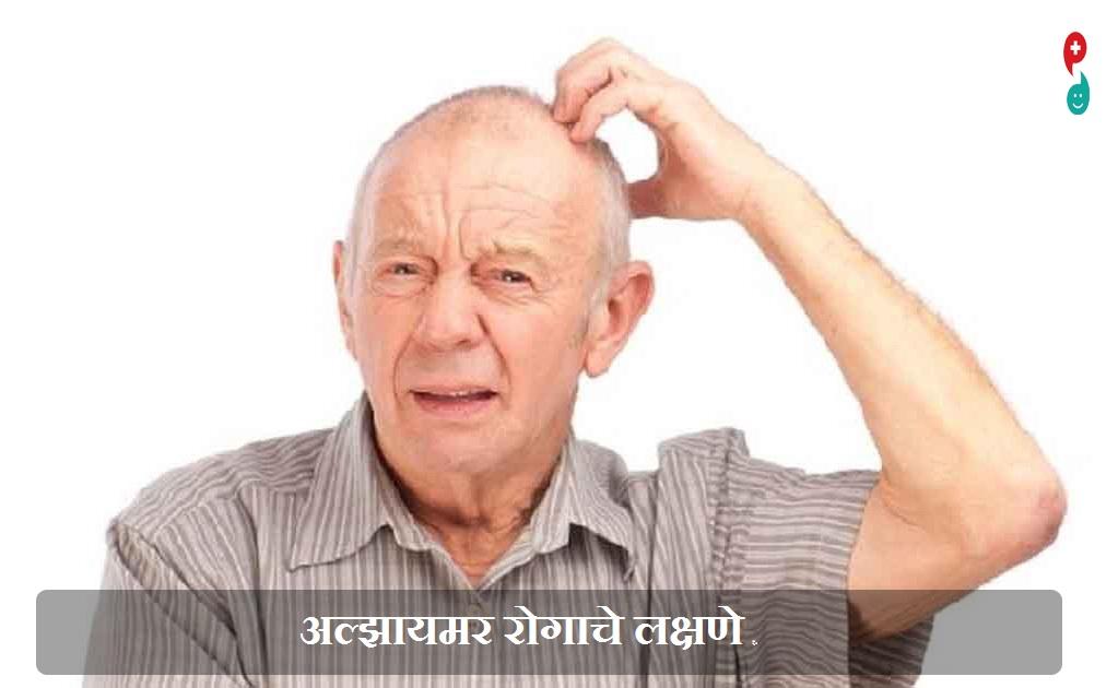अल्झायमर रोग