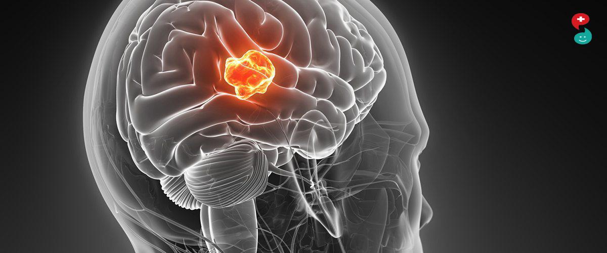 मेंदूचा कर्करोग