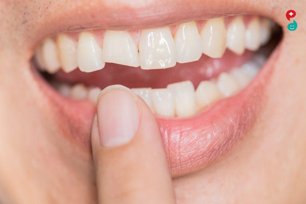 चिपडलेले दात
