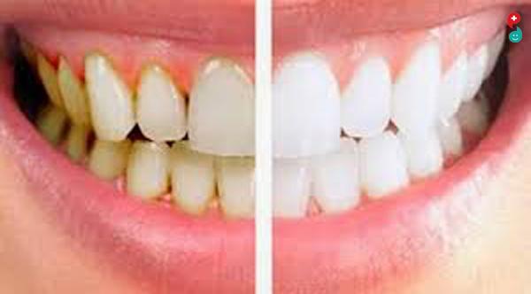 दातांची कीड