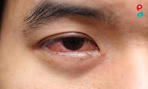डोळ्यामधील संक्रमण