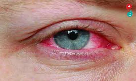 डोळे लाल होणे