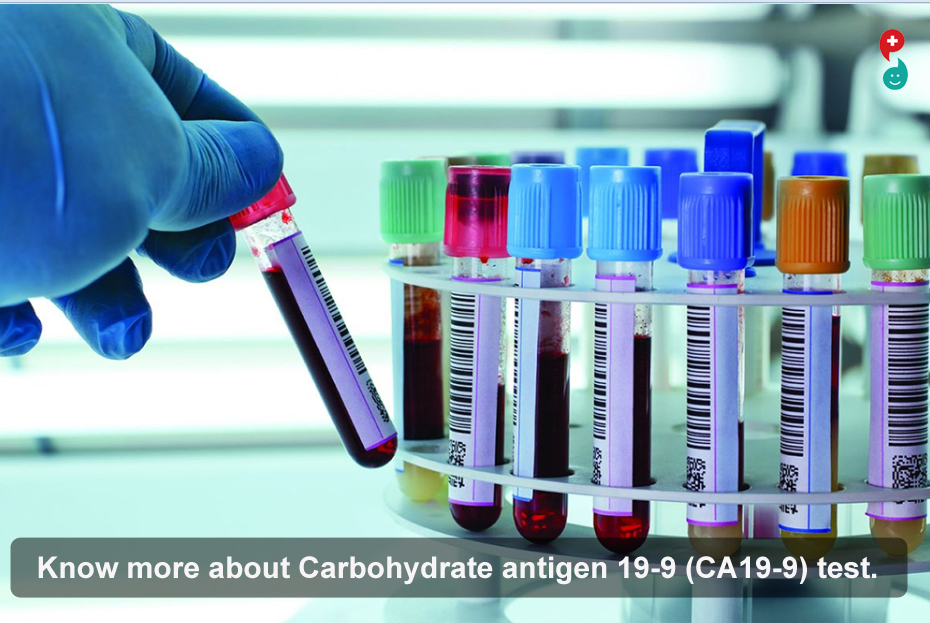 Carbohydrate antigen 19-9 (CA19-9) test
