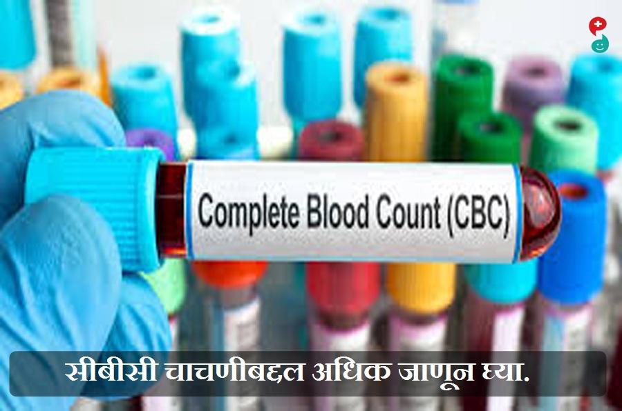 संपूर्ण रक्त गणना (सीबीसी)चाचणी