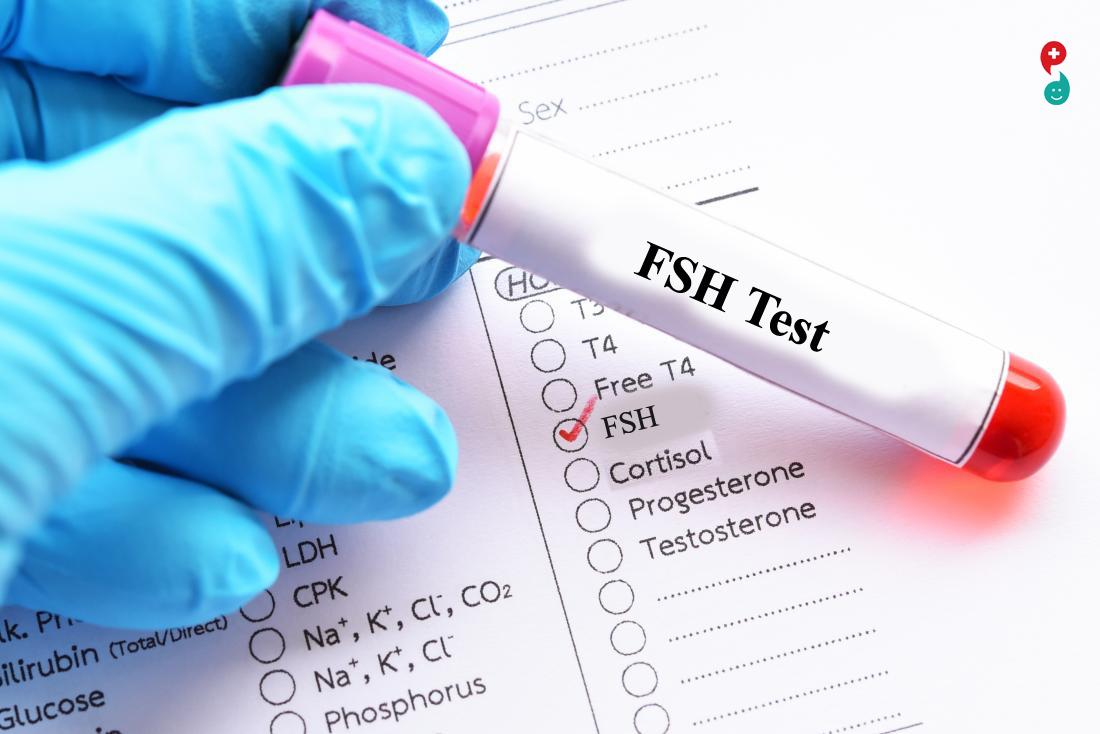 फोकिकल-स्टिम्युलेटिंग हार्मोन (एफएसएच) चाचणी