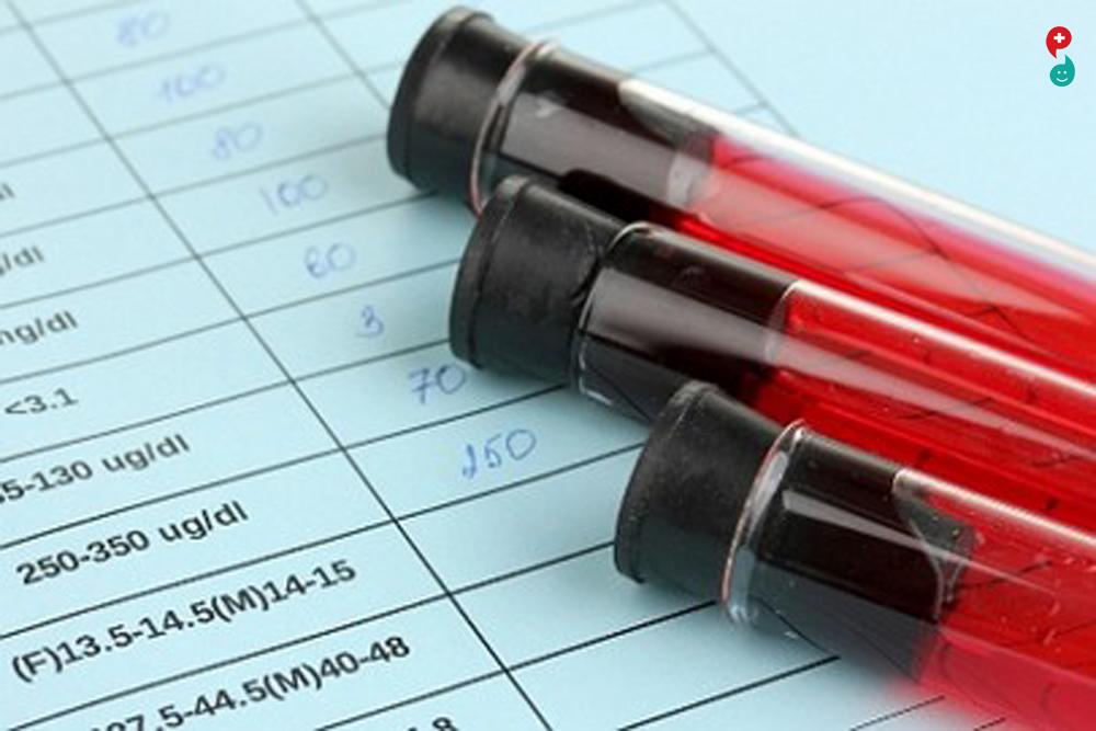 लिपिड रक्त तपासणी
