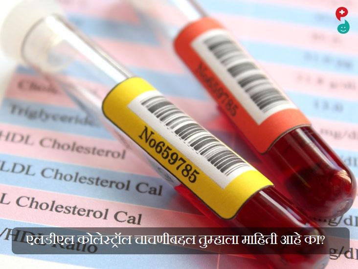 एलडीएल कोलेस्ट्रॉल चाचणी