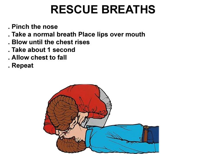 How to Perform Cardiopulmonary resuscitation (CPR)?
