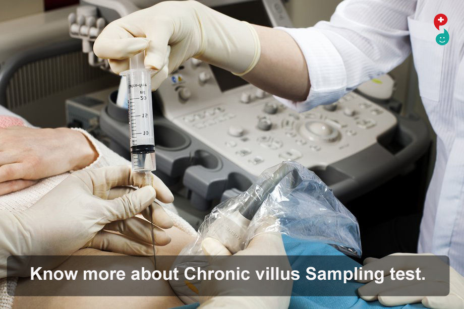 Chorionic Villus Sampling (CVS)