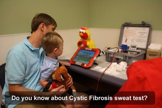 Cystic Fibrosis Sweat Test