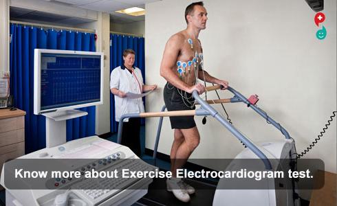 Exercise Electrocardiogram