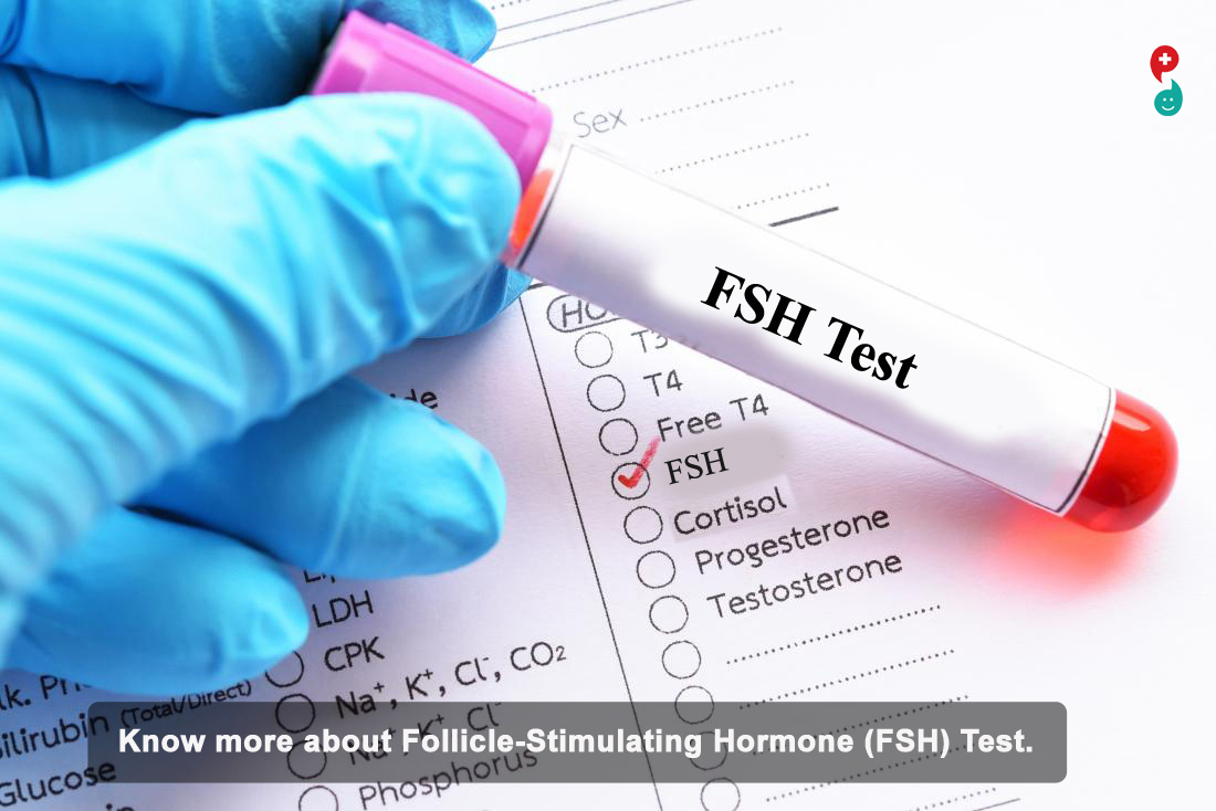 Follicle Stimulating Hormone (FSH) Test