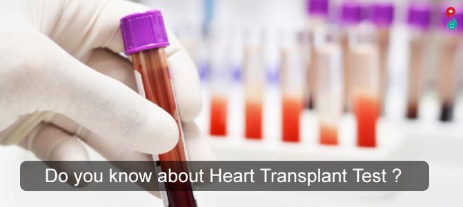 Heart Transplant Test