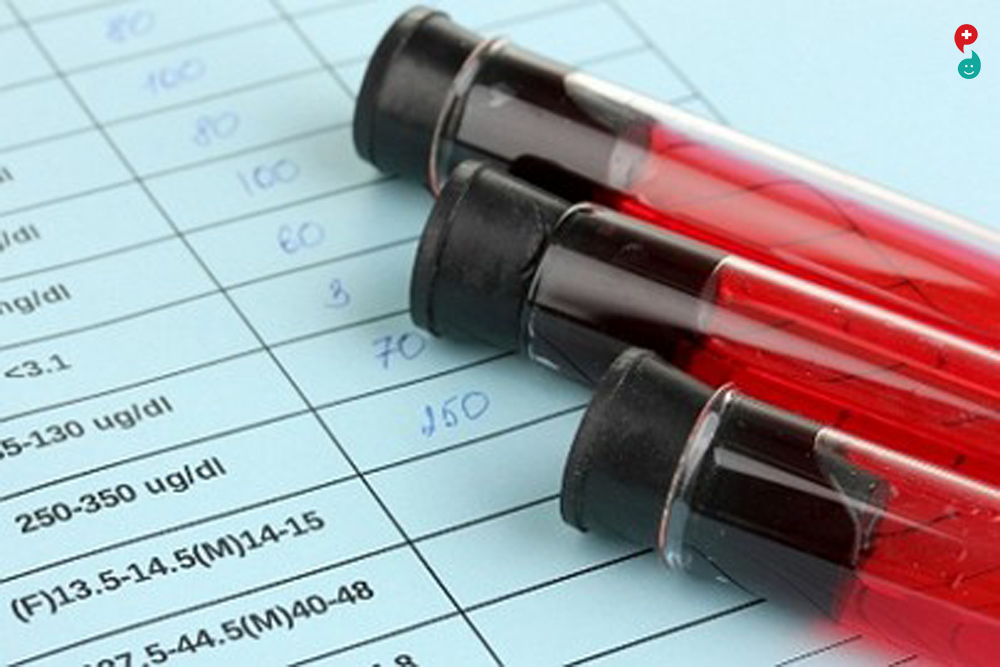 Liver Tests for Infectious Mononucleosis