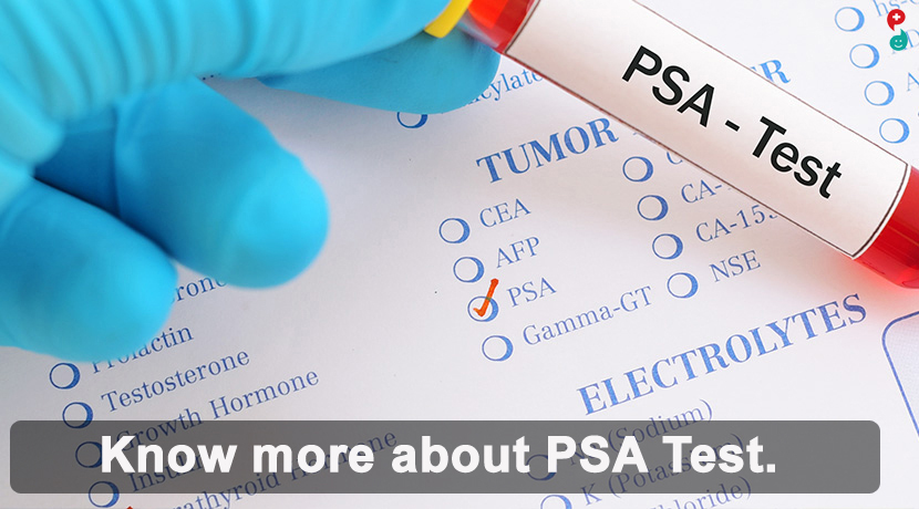 Prostate Specific Antigen (PSA) Test