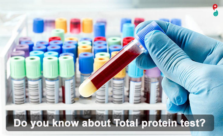 Total Serum Protein Test