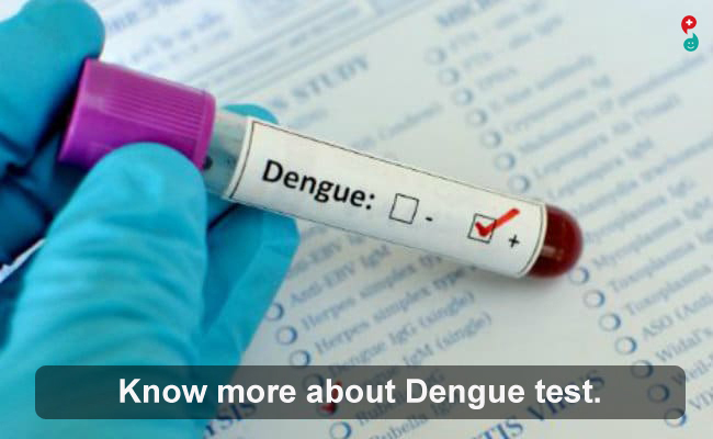 Dengue Fever Test