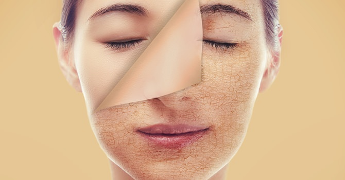 Dry Skin: How To Get Rid Of It?
