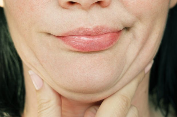 Get Rid Of Double Chin: Facial Yoga To Lose That Extra Facial Chub