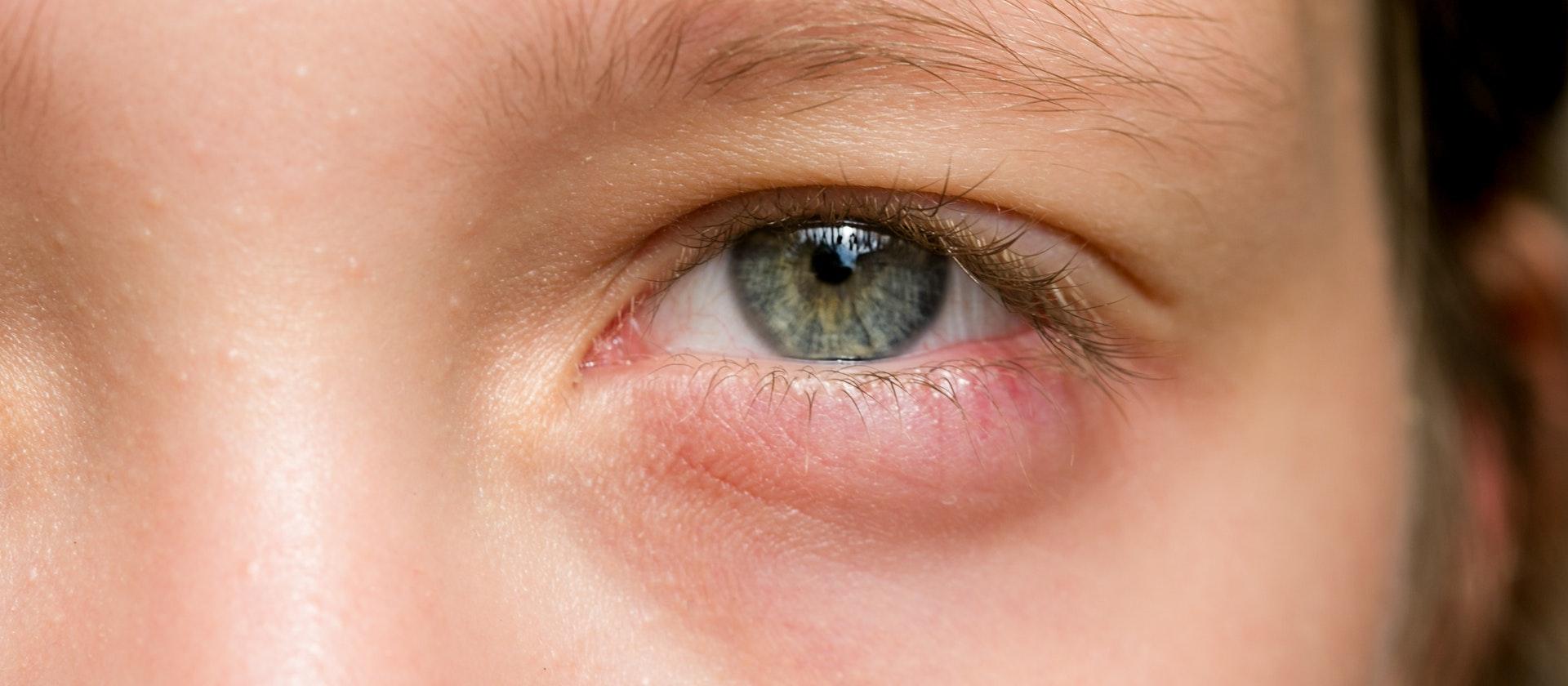 डोळ्यांची सूज कमी करण्यासाठी...