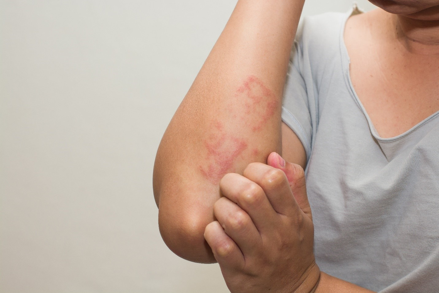 Best Homeopathic Remedies For Skin Allergies!