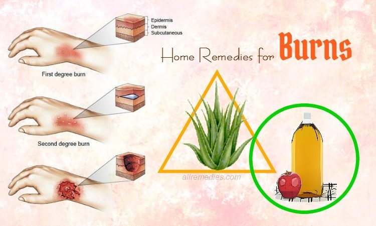 The best home remedies for burns