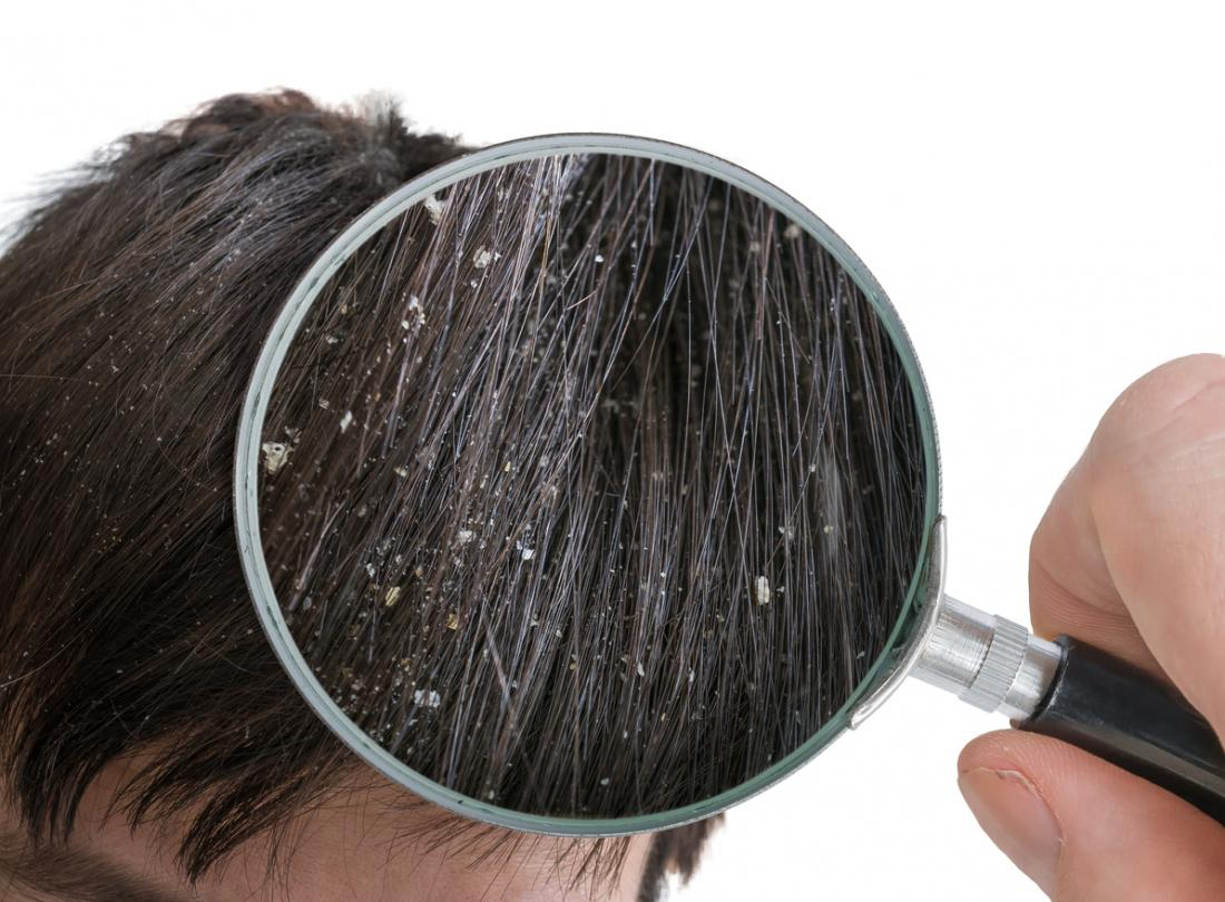Ayurveda For Dandruff: 5 Home Remedies To Beat Dandruff Naturally