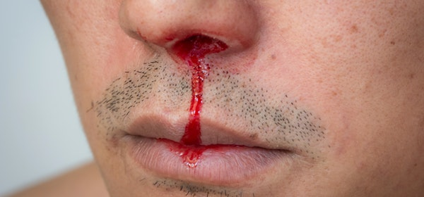 Some Effective Home Remedies To Stop Nose Bleeding