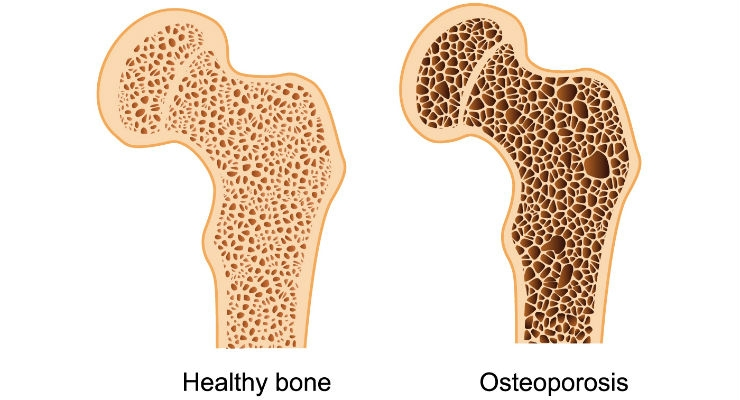 Foods That Can Lead to Bone Loss
