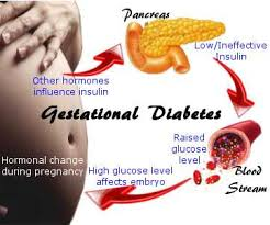 Gestational diabetes is an early sign of Type 2 diabetes risk