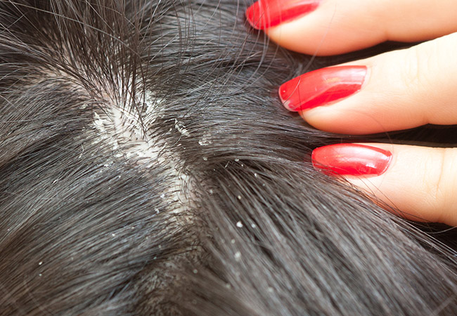Dandruff - Can Ayurvedic Remedies Help Treat it?