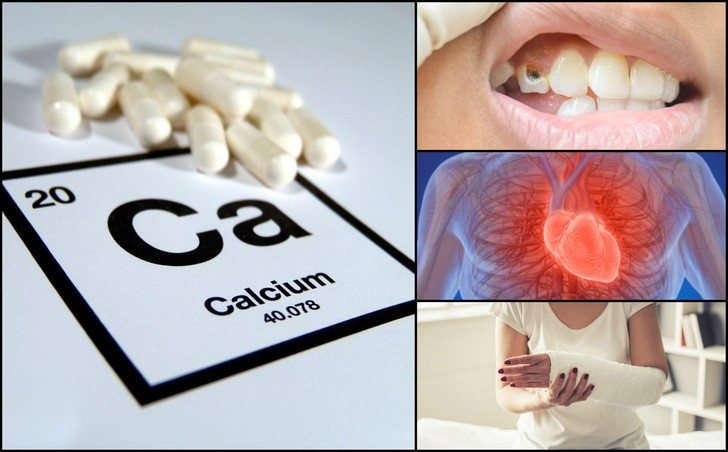 Calcium Deficiency - 3 Signs You are Suffering from it