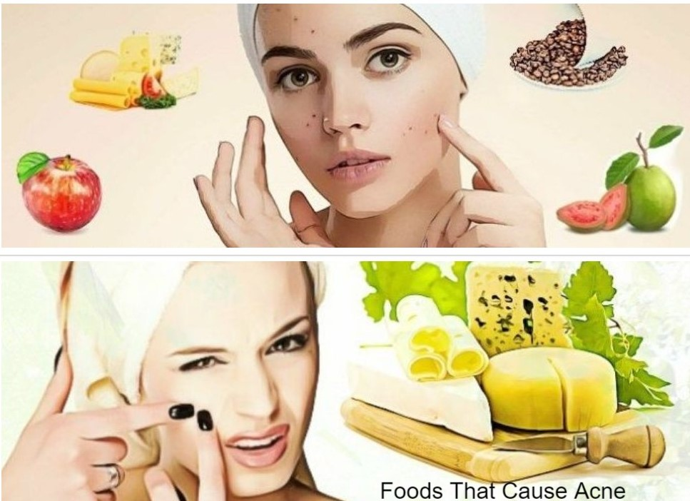 CAN SOME FOODS CAUSE PIMPLES?
