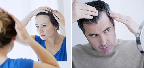 Some Strategies to Prevent Hair Loss: In Men and Women