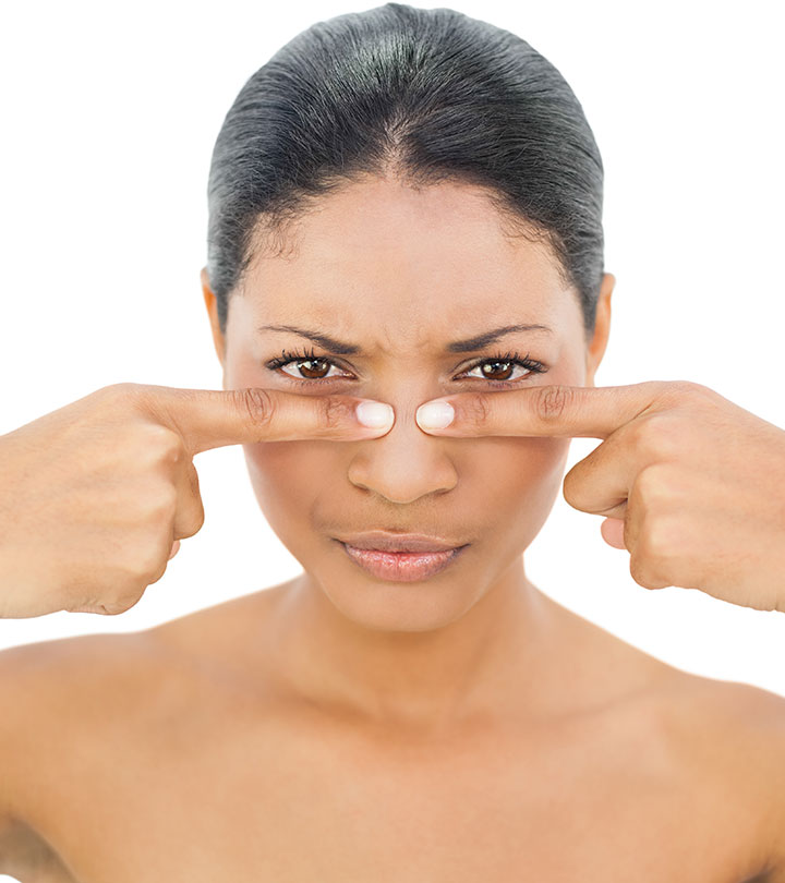 Blackheads - What Can You Do To Prevent Them From Happening?
