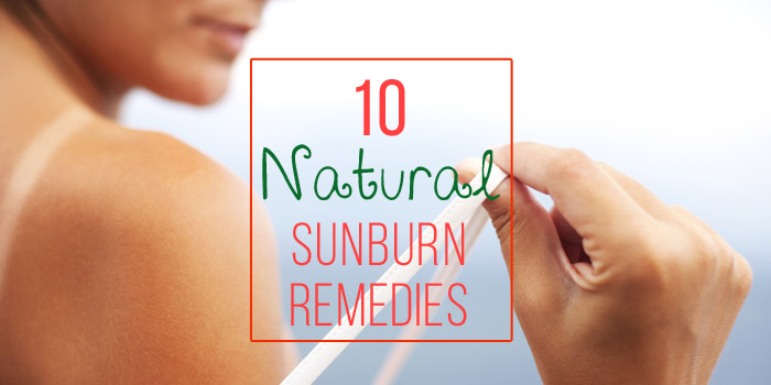 Ten Natural Remedies for Sunburns