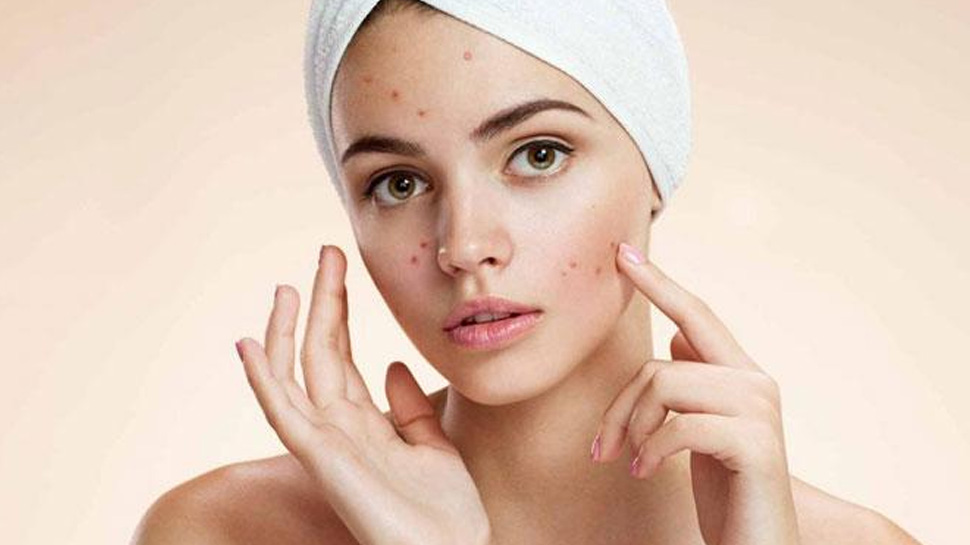 Acne woes? Follow these simple tips to keep pimples at bay