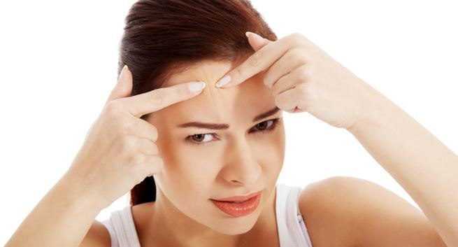 Do You Know that Dandruff Causes ACNE?