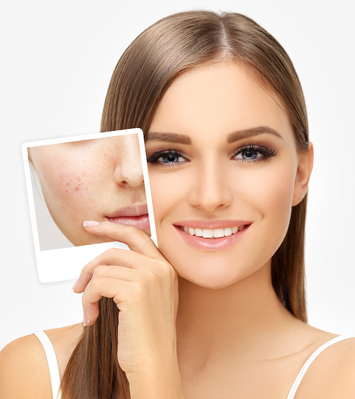 Acne Scars - How To Get Rid Of Them? Acne Scars - How To Get Rid Of Them? Skin Care get rid of acne